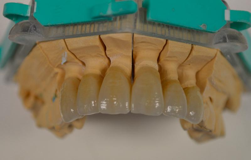 2-gallery-protesi-fissa