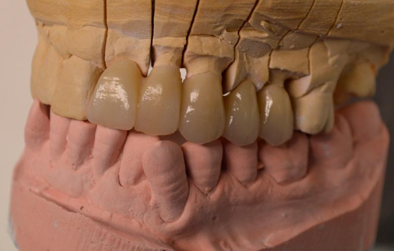 3-gallery-protesi-fissa