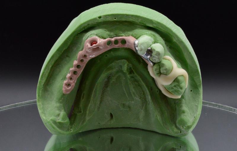 4-gallery-protesi-scheletrata