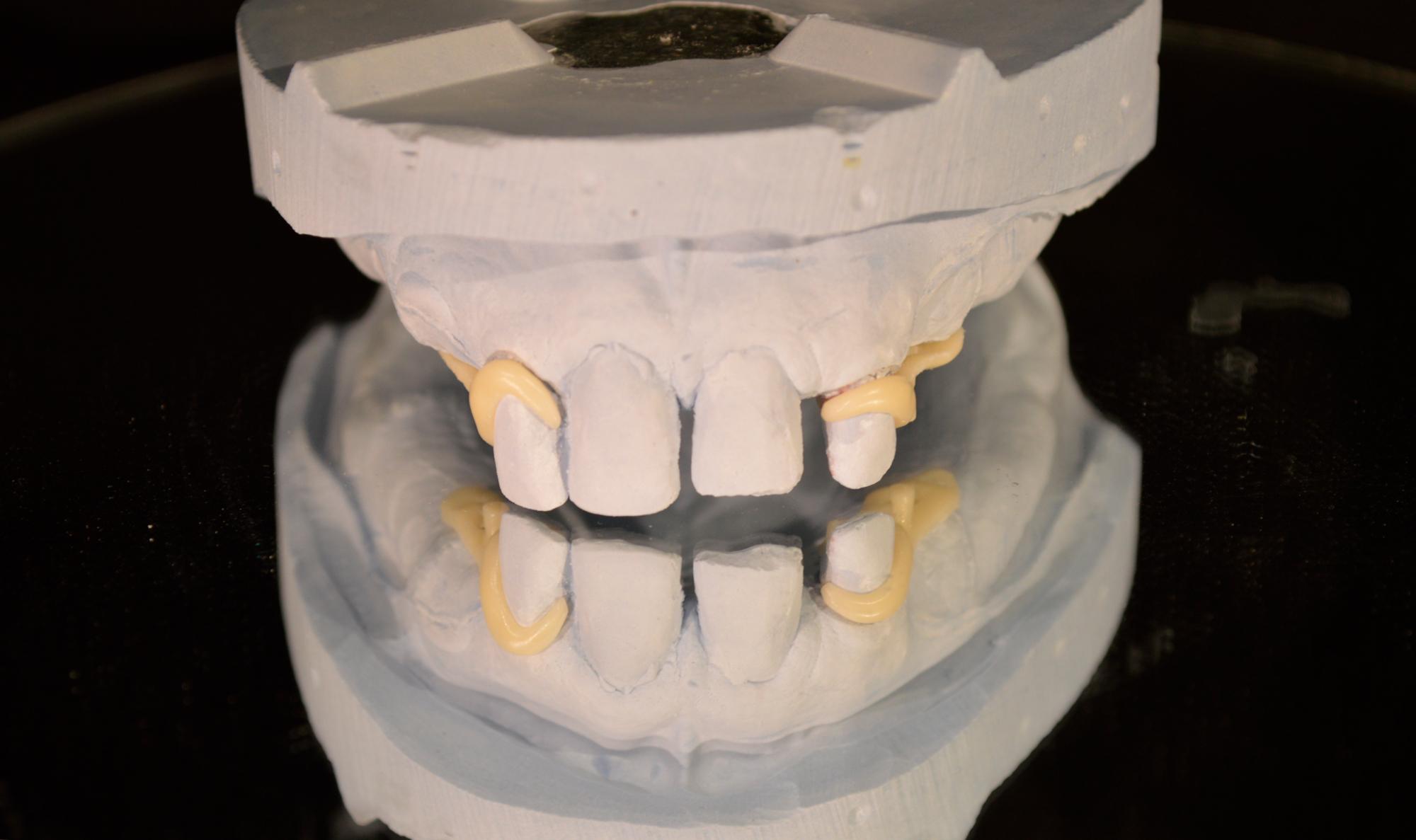 5-galleri resina acetalica