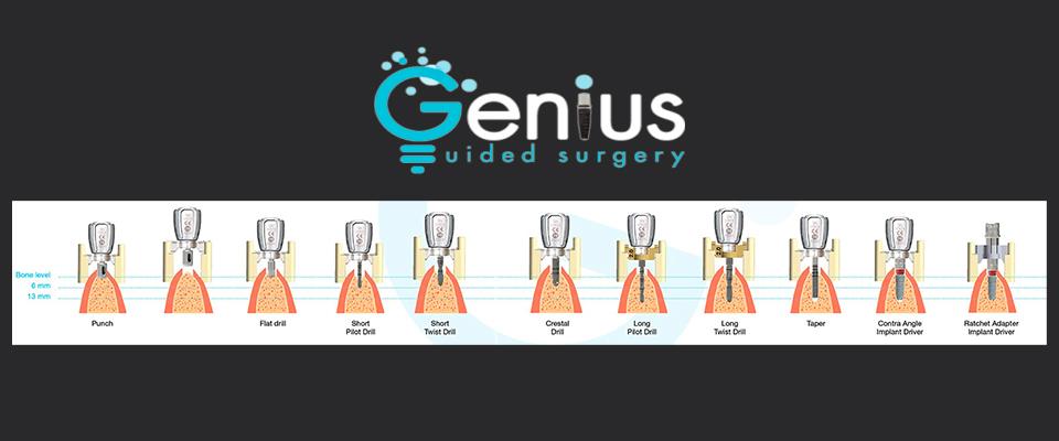 Odontoprogress presenta 2Ingis: chirugia guidata ad alta precisione
